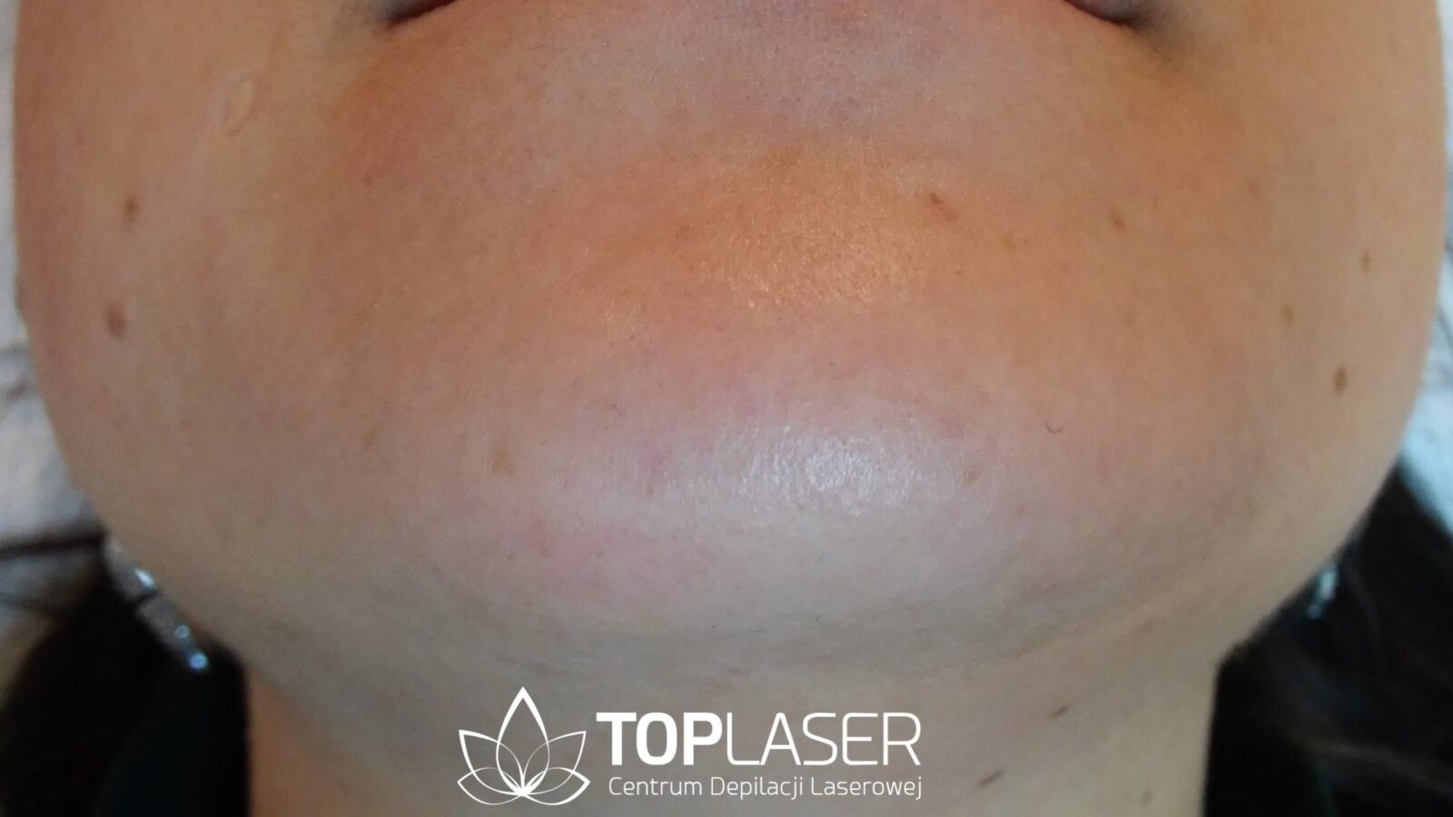Salon Top Laser